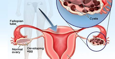 All You Need To Know About Ovarian Cysts Giftedmom Blog